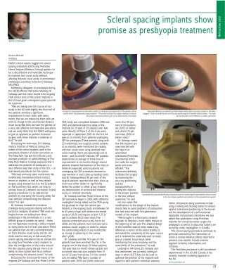 Scleral spacing implants show promise as presbyopia treatment