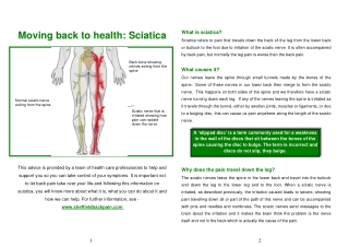 Moving back to health: Sciatica