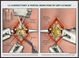 L3 LAMINECTOMY & PARTIAL RESECTION OF LEFT L3 FACET