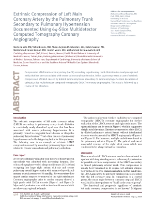 Extrinsic Compression of Left Main Coronary Artery by the Pulmonary Trunk Secondary to Pulmonary Hypertension Documented Using 64-Slice Multidetector Computed Tomography Coronary Angiography