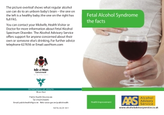 Fetal Alcohol Syndrome the facts