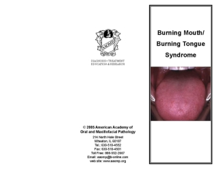 What is burning mouth syndrome? How is burning mouth syndrome treated?