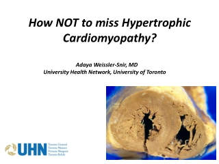 How NOT to miss Hypertrophic Cardiomyopathy?