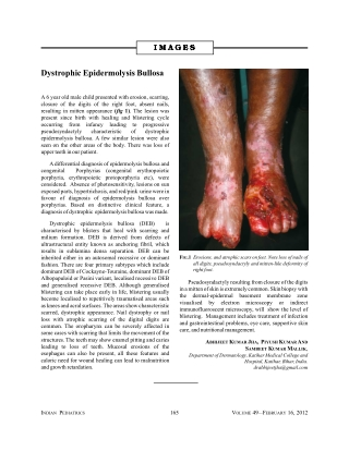 Dystrophic Epidermolysis Bullosa