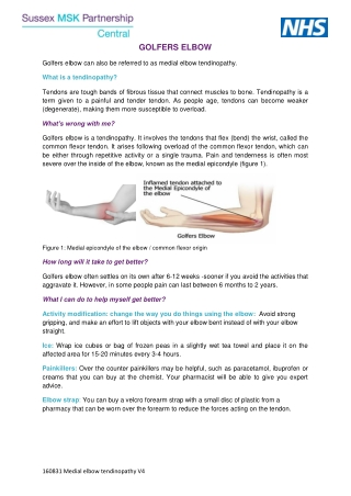 GOLFERS ELBOW