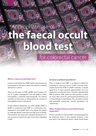 the faecal occult blood test