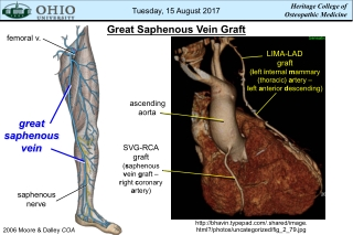 Great Saphenous Vein Graft