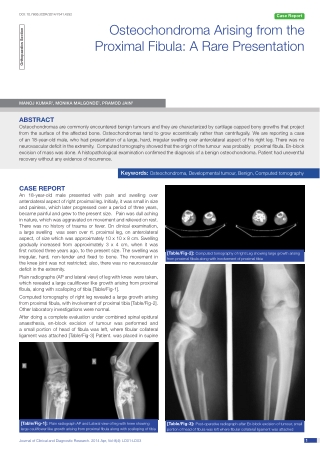 Osteochondroma Arising from the Proximal Fibula: A Rare Presentation