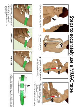 Steps to accurately use a MUAC tape
